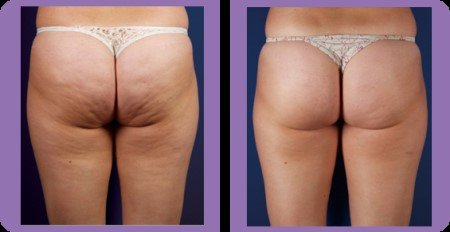exercises to get rid of cellulite